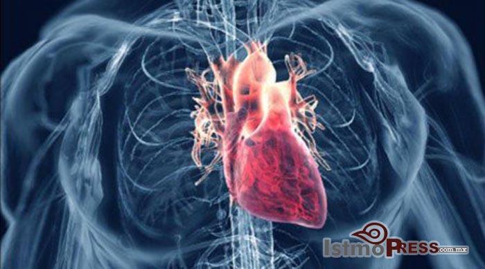 cardio istmopress